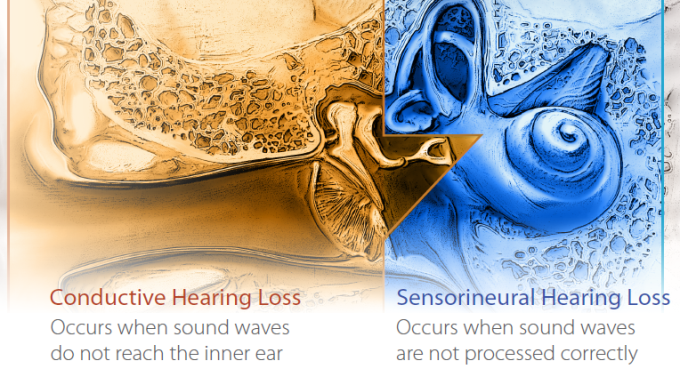 Mixed-Hearing-Loss-2.png